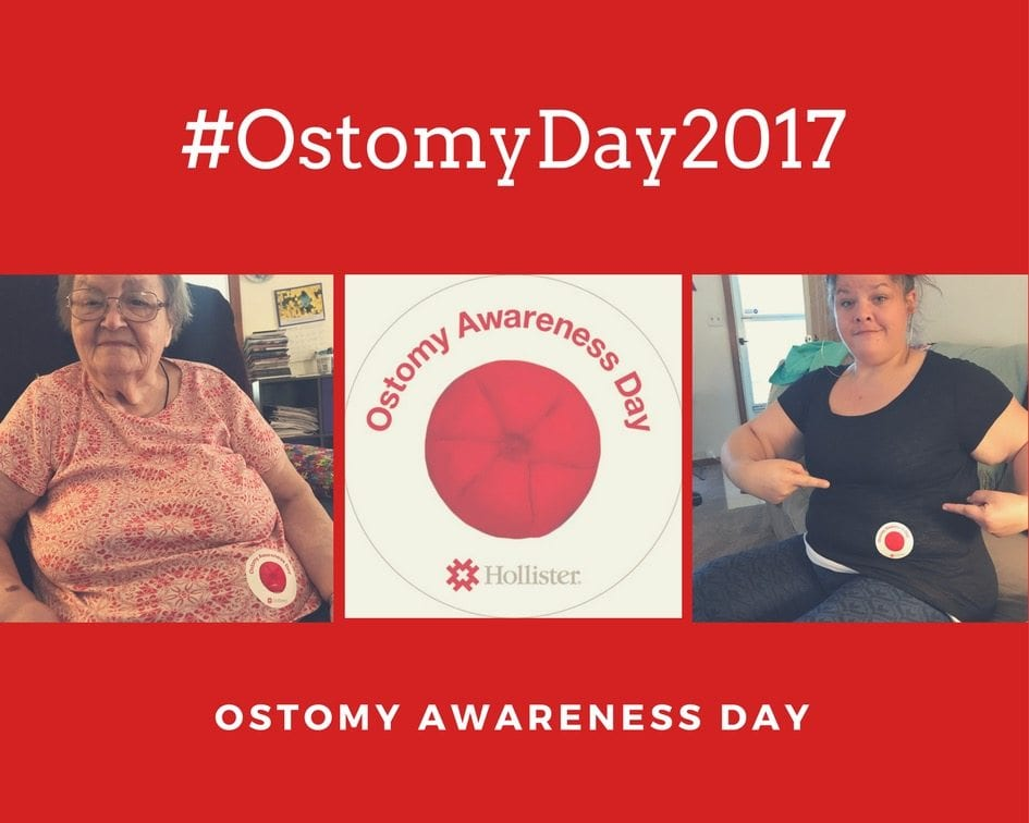 Navigating the Journey Together: #OstomyDay2017
